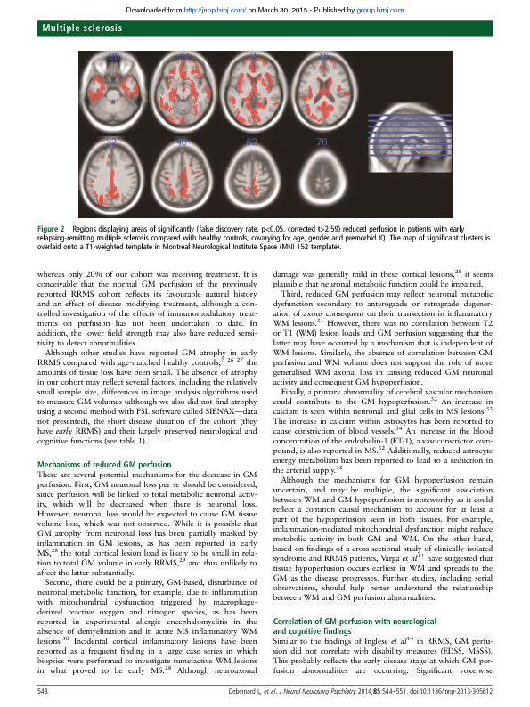 Download Reduced grey matter perfusion without volume loss in early relapsing-remitting multiple sclerosis.