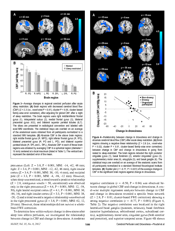 Download Cerebral perfusion differences between drowsy and non-drowsy individuals following acute sleep restriction.