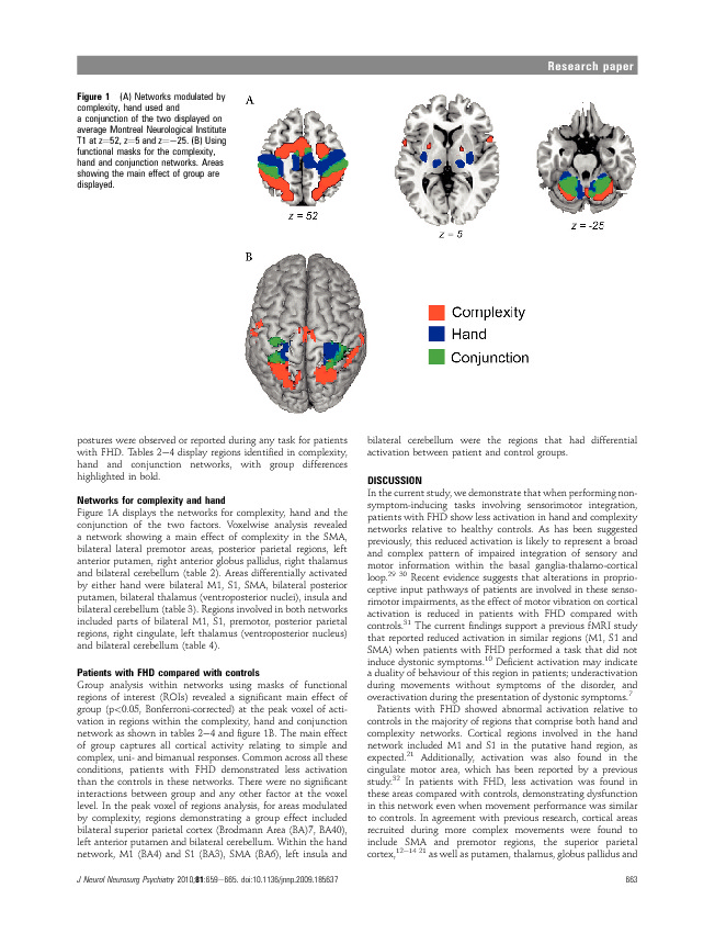 Download Impaired sensorimotor integration in focal hand dystonia patients in the absence of symptoms.