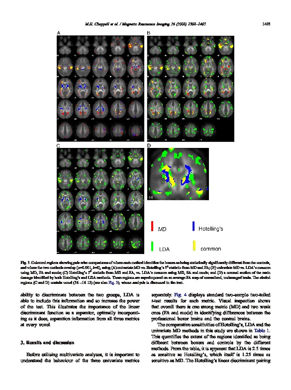 Download Multivariate analysis of diffusion tensor imaging data improves the detection of microstructural damage in young professional boxers.