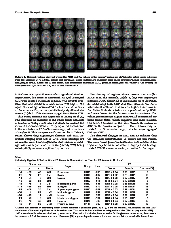 Download Distribution of microstructural damage in the brains of professional boxers: A diffusion MRI study.