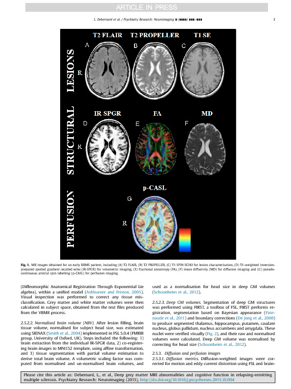 Download Deep grey matter MRI abnormalities and cognitive function in relapsing-remitting multiple sclerosis.