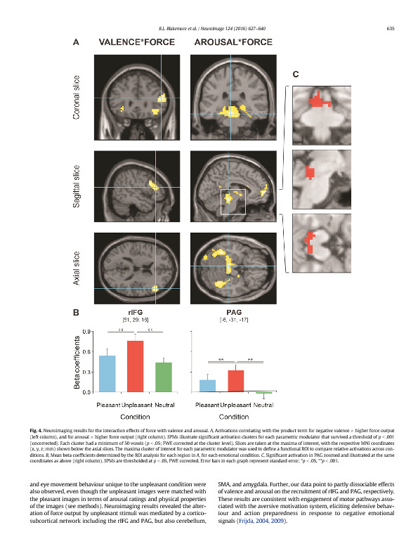 Download Negative emotions facilitate isometric force through activation of prefrontal cortex and periaqueductal gray.