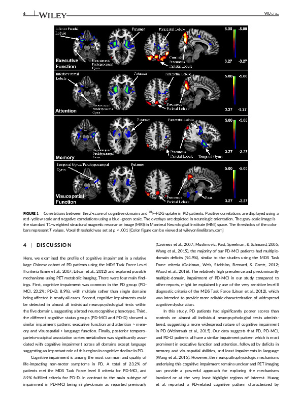 Download Clinical characteristics of cognitive impairment in patients with Parkinson's disease and its related pattern in 18F‐FDG PET imaging.