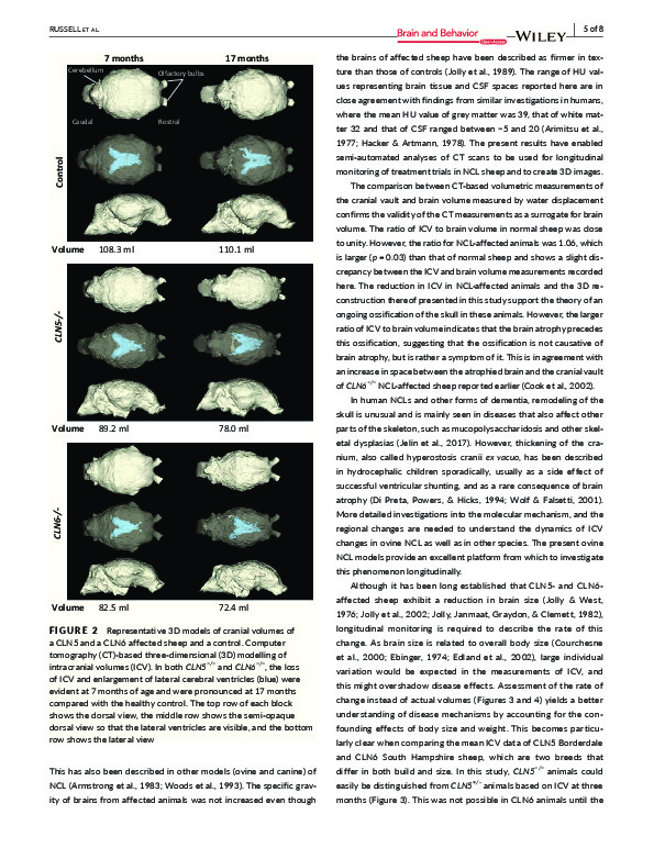 Download Computed tomography provides enhanced techniques for longitudinal monitoring of progressive intracranial volume loss associated with regional neurodegeneration in ovine neuronal ceroid lipofuscinoses.
