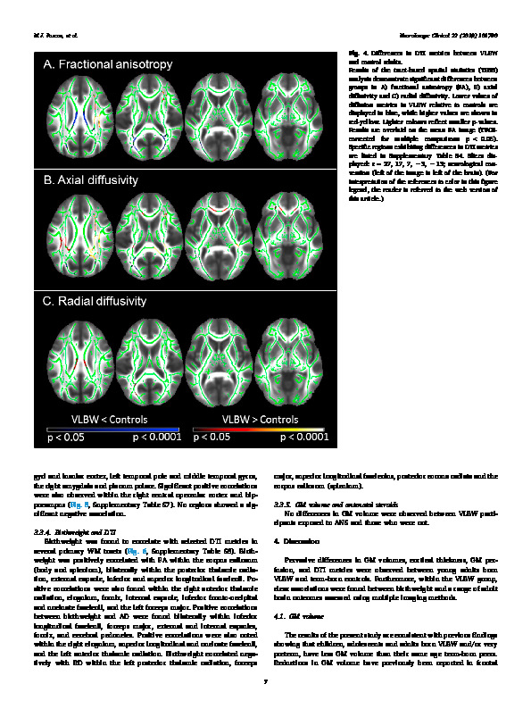 Download Altered grey matter volume, perfusion and white matter integrity in very low birthweight adults.