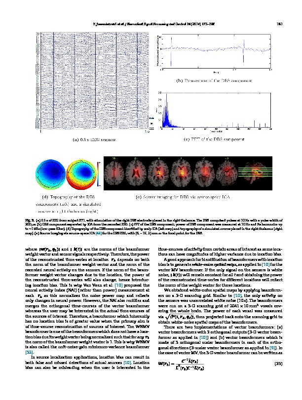 Download Comparison of beamformers for EEG source signal reconstruction.