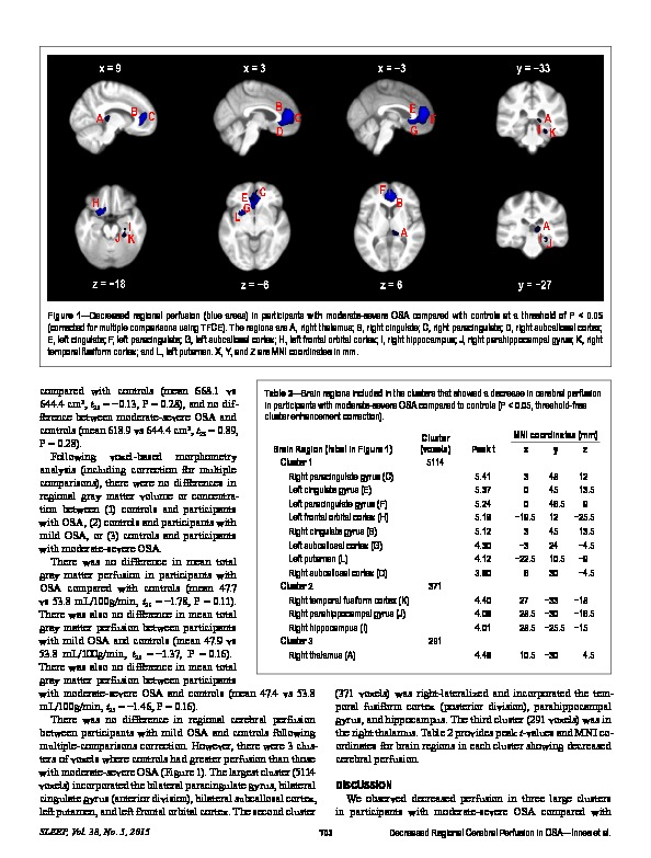 Download Decreased regional cerebral perfusion in moderate-severe obstructive sleep apnoea during wakefulness.