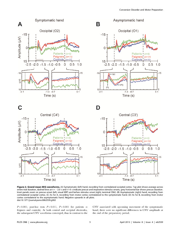 Download Distinct Modulation of Event-Related Potentials during Motor Preparation in Patients with Motor Conversion Disorder