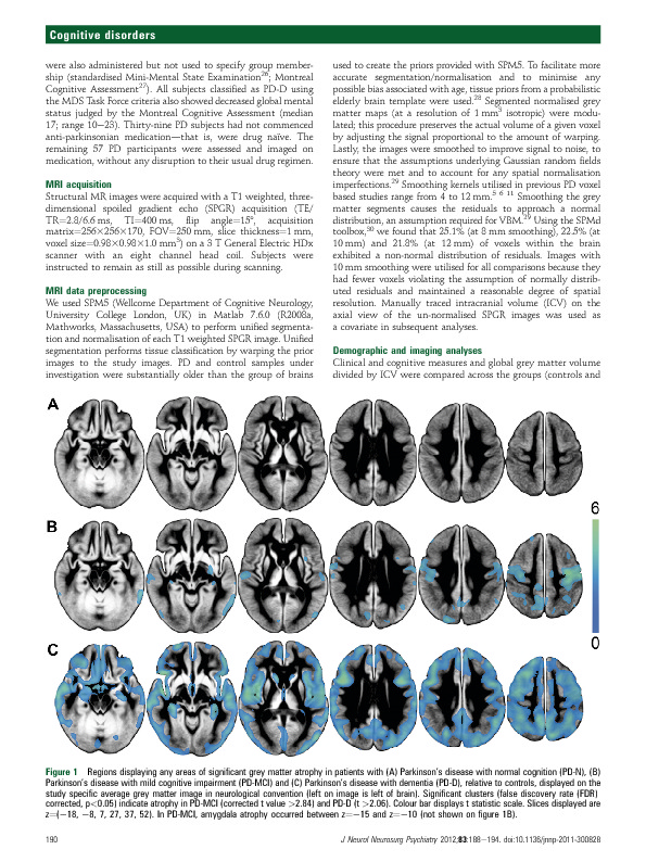 Download Grey matter atrophy in cognitively impaired Parkinson's disease.